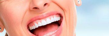 Chica sonriente tratamiento dental moncloa